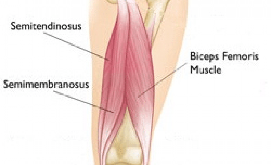 Pulled Hamstring Muscle Ep Wellness Clinic