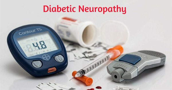 The Types of Neuropathy Caused by Diabetes
