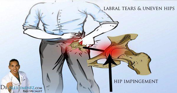Hip Injury: Acetabular Labral Tears