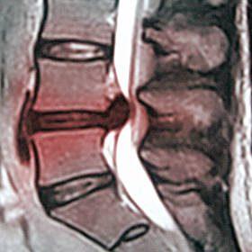 herniated lumbar disc mri  m.jpg