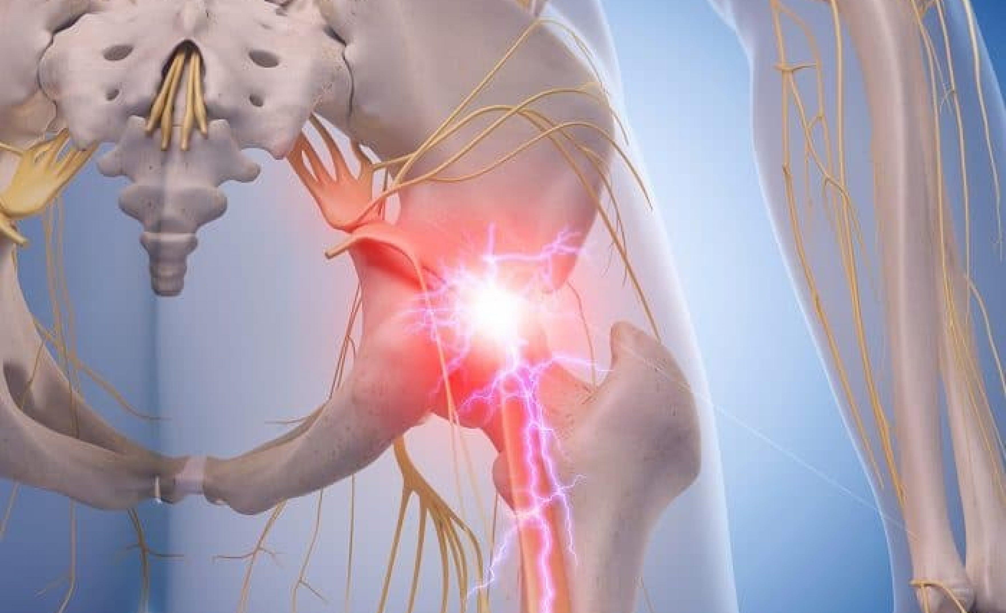 Piriformis Syndrome Management Ep Wellness Functional Medicine Clinic