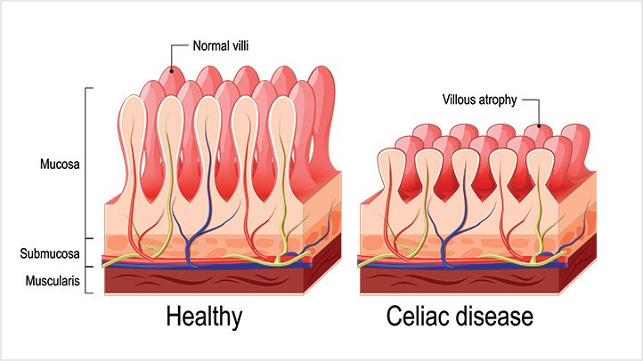 Celiac-Disease-Causes-and-Risk-Factors-alt-722x406