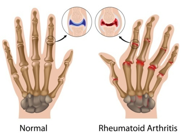 rheumatoid-arthritis-hands