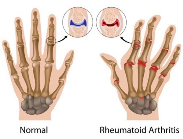 reumatoidinio artrito rankos