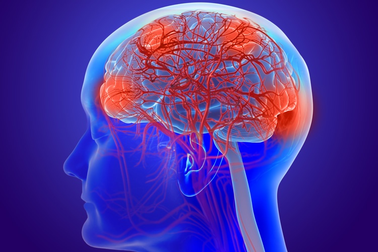 Functional Neurology: What is a Leaky Brain?   El Paso, TX Chiropractor