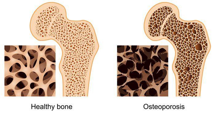 остеопорозом остриженные