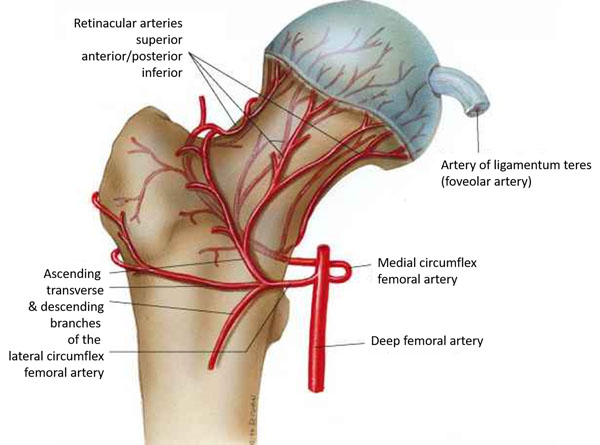 11860 Vista Del Sol, Ste. 128 El diagnóstico erróneo de ciática puede ser osteonecrosis de la cabeza femoral